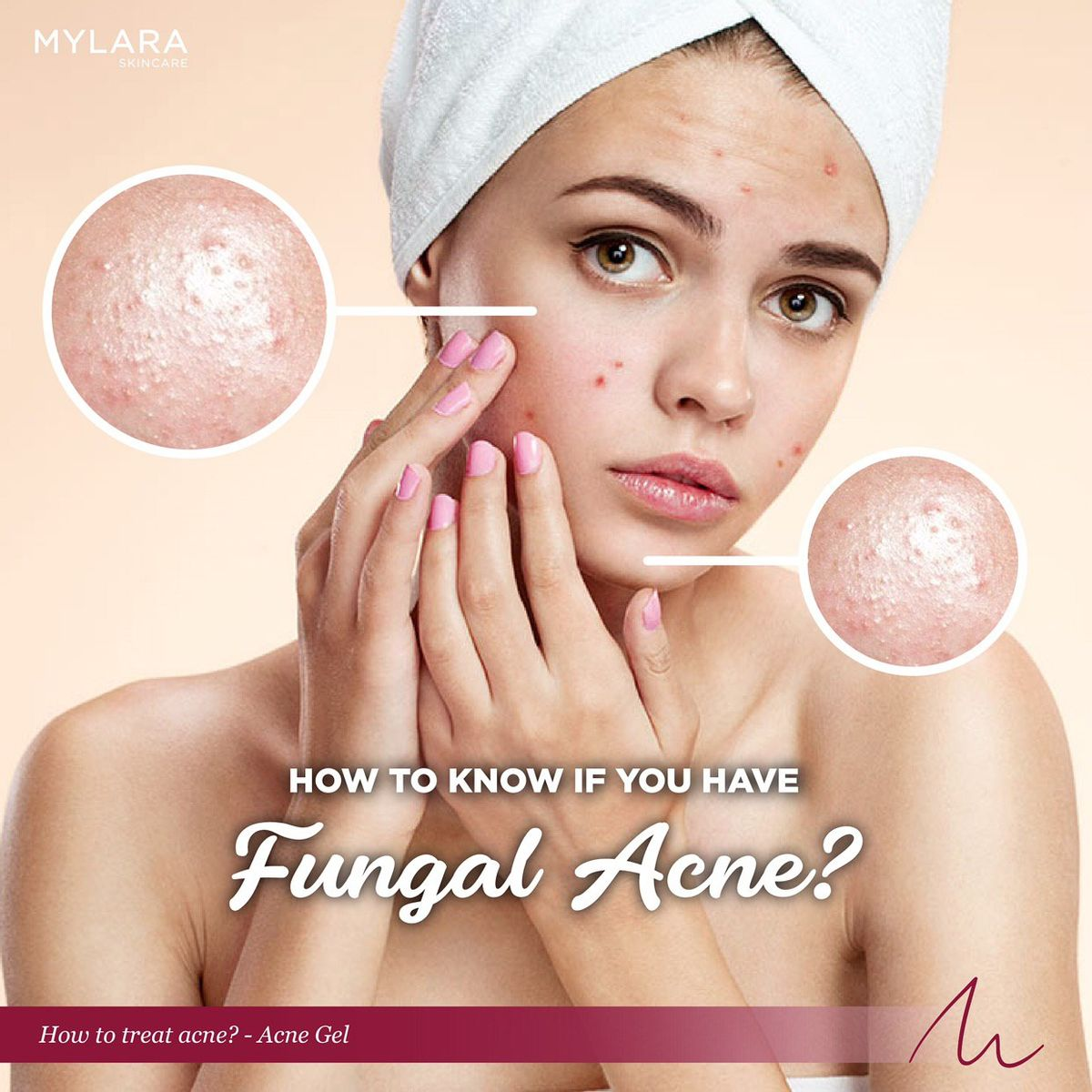 HOW TO KNOW IF YOU HAVE FUNGAL ACNE