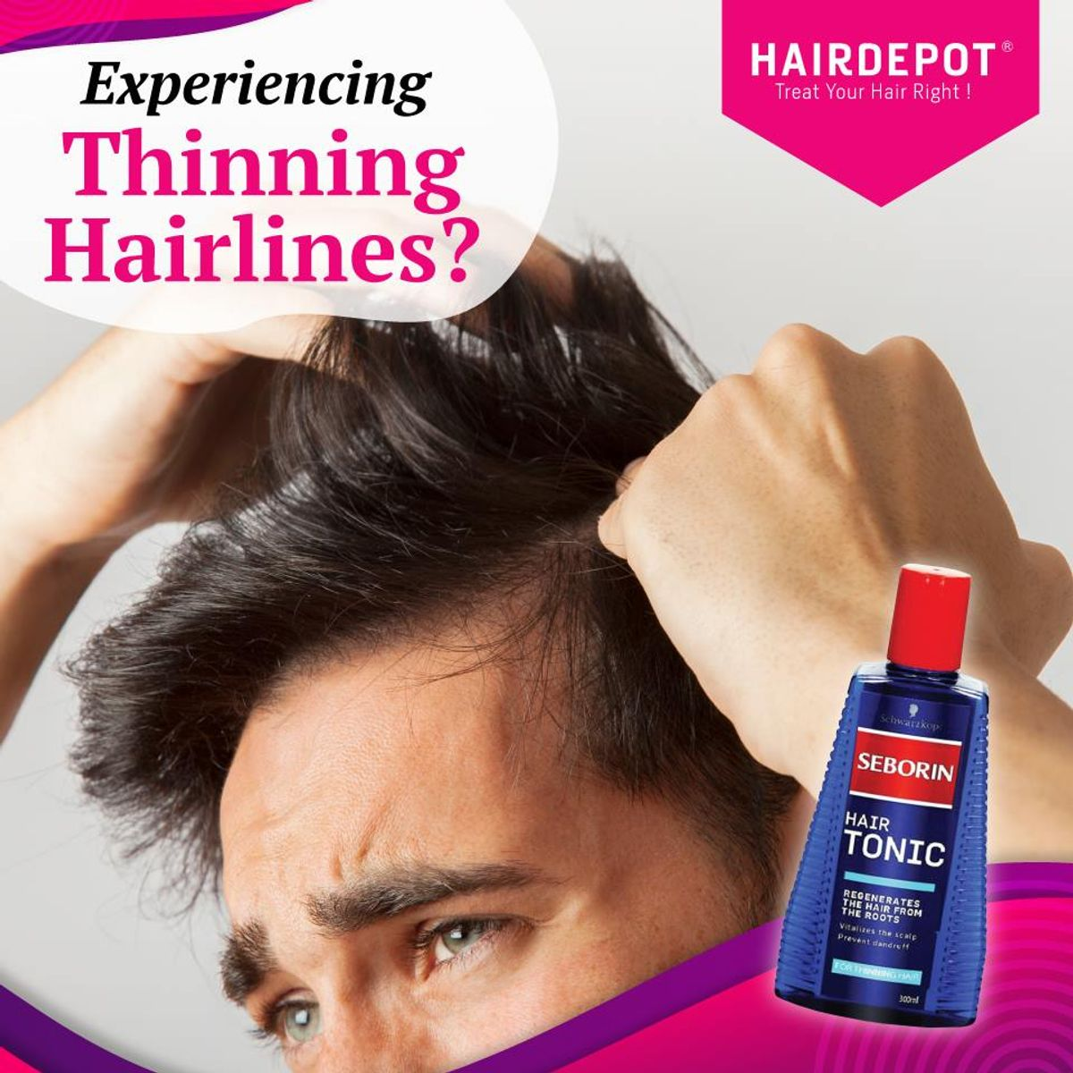 Experiencing Thinning Hairlines?