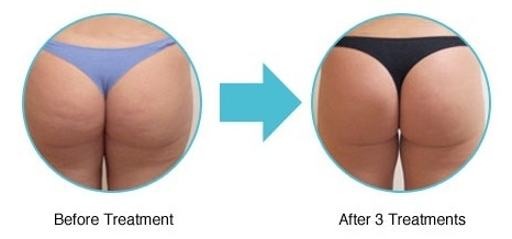 brazilian-bum-lift_reshaping_contouring_therapie_clinic