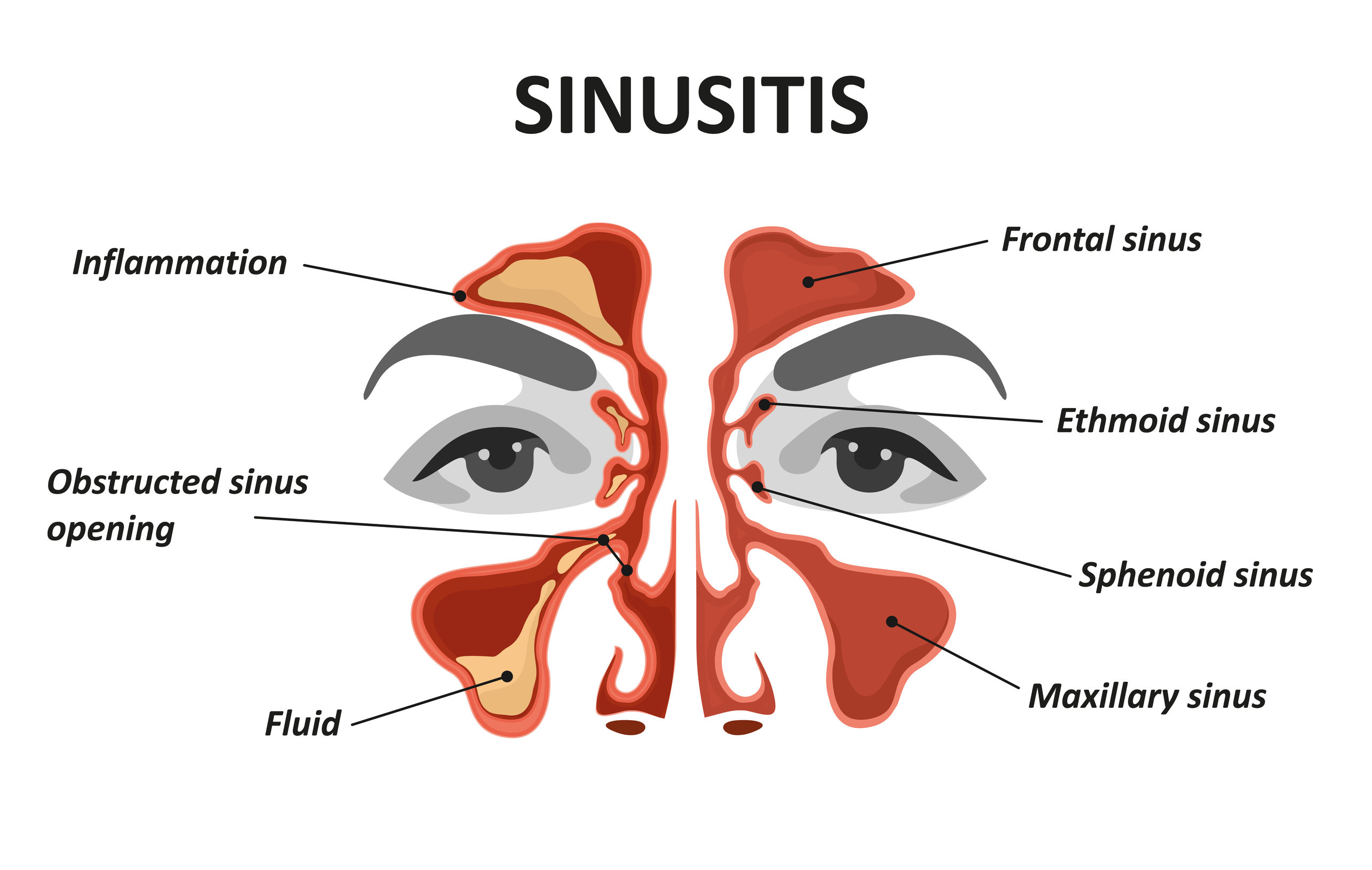 sinusitis.jpg