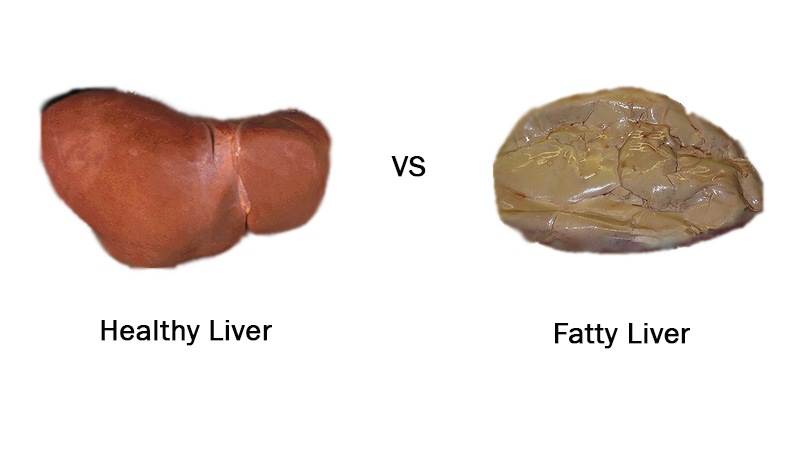 fatty liver vs.jpg