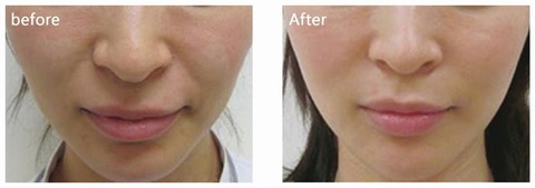 3D Angel Lift Before & After.jpg