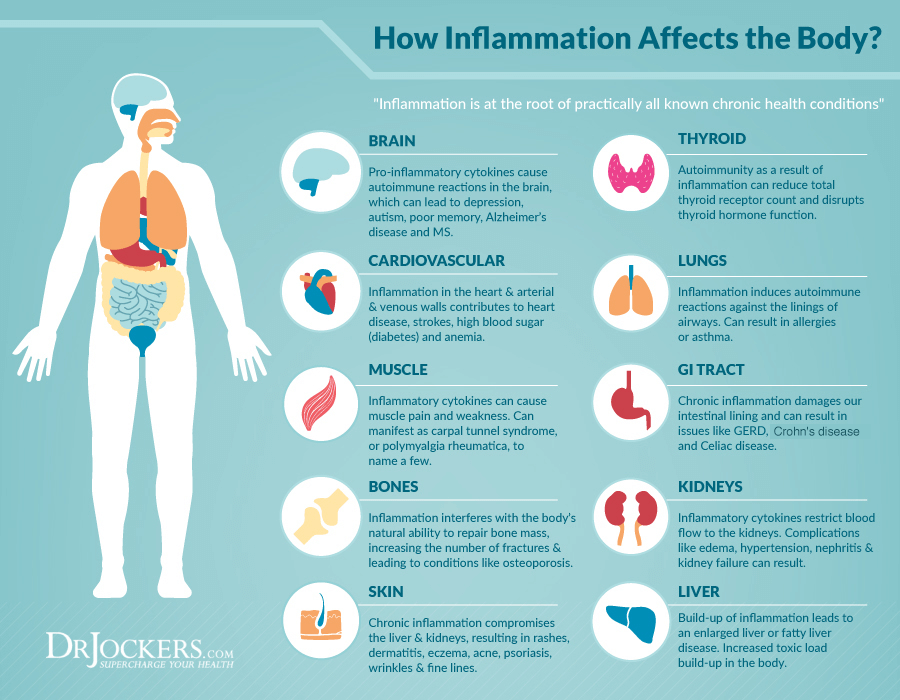 Inflammation Diagram Malaysia www.proteinlab.com.my.png