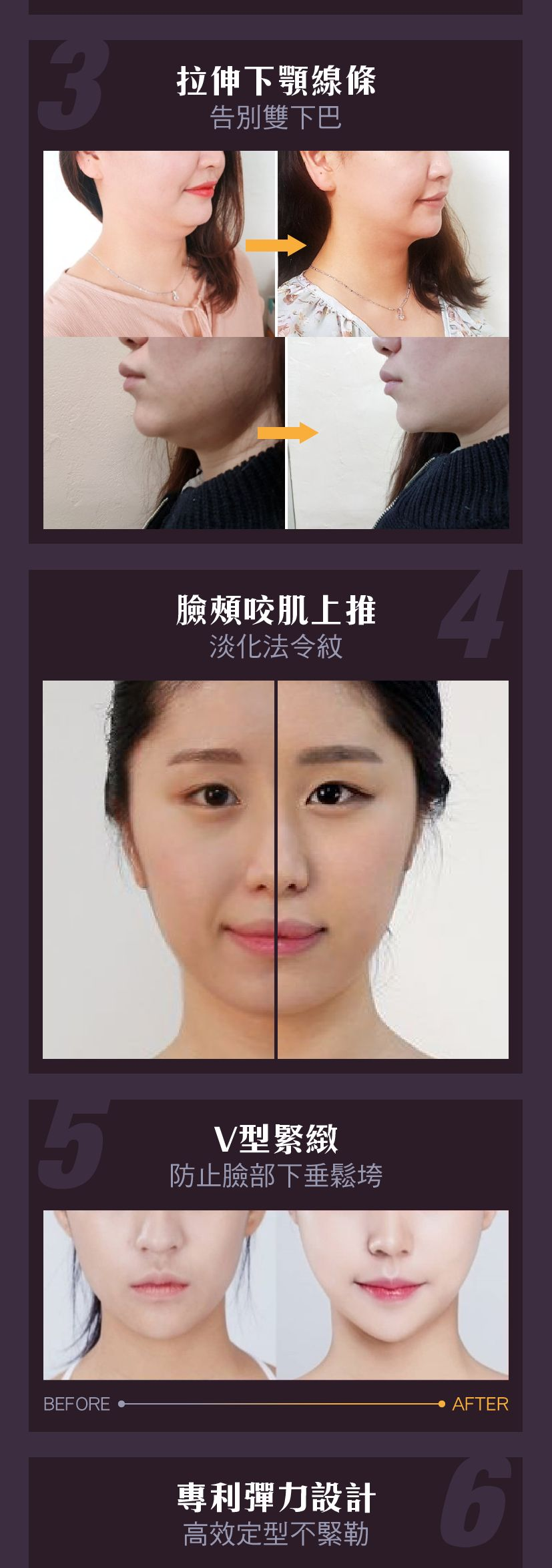 Muro Coconenne V-Line Band  V Shaped Face while Sleeping (1pcs) 睡眠瘦脸神器 D07-4.png