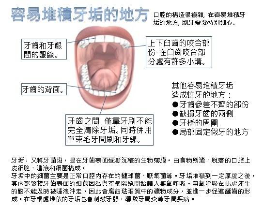 美適Maxill 單束毛牙間刷牙刷 (30入)-1.jpg