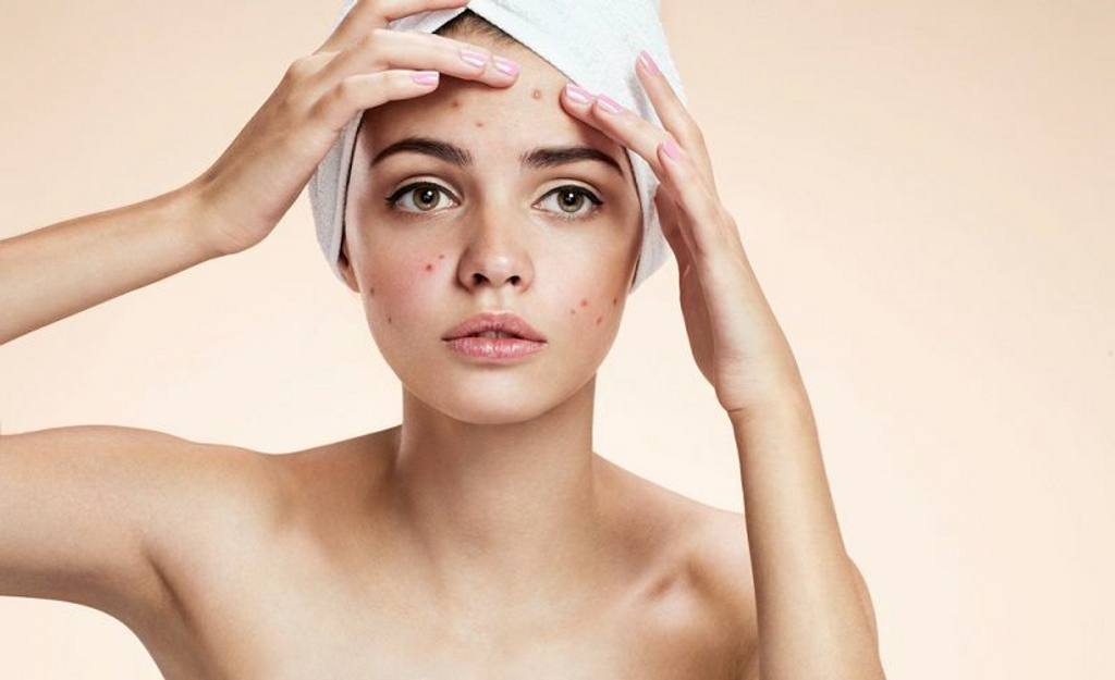 Papules Acne: Characteristics and How to Overcome it