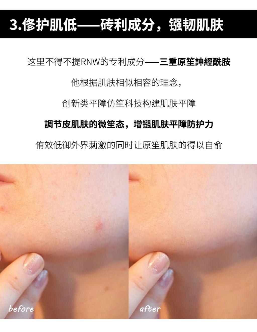 JuzBeauty_JuzBeautyMalaysia_JuzPretty_Authentic_Kbeauty_Malaysia_Jbeauty_RNW_Der_Special_Moisturizing_Repair_Cream_ (13).jpg
