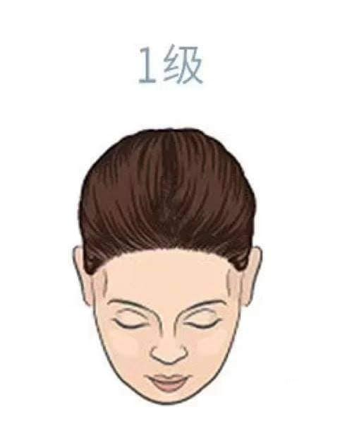 hair_loss_drop_reasons_level_health_lifestyle.jpg