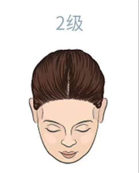 hair_loss_drop_reasons_level_health_lifestyle (2).jpg