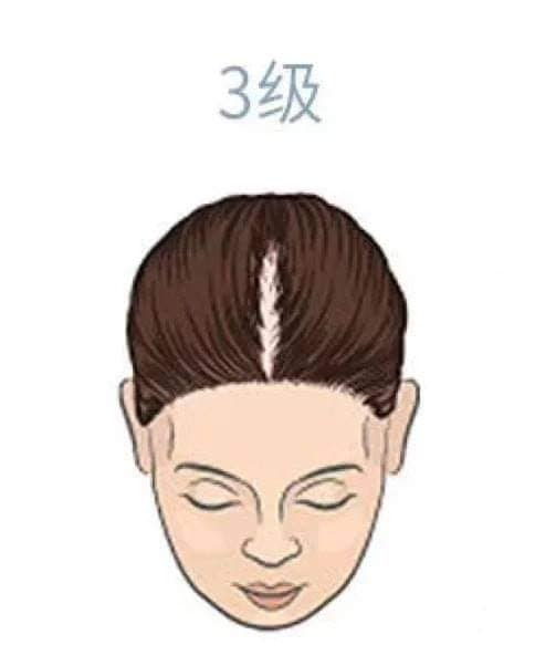 hair_loss_drop_reasons_level_health_lifestyle (3).jpg
