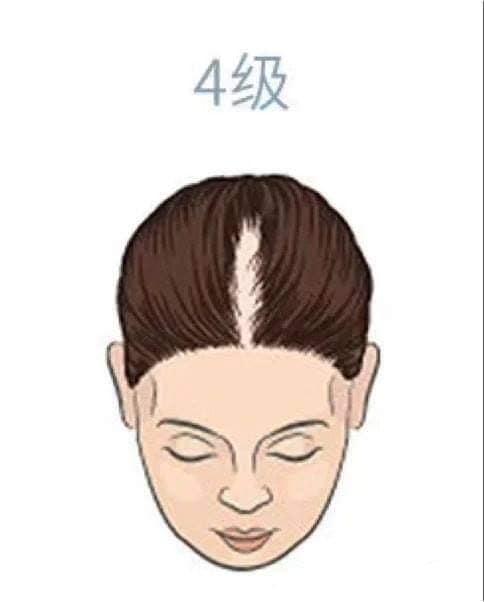 hair_loss_drop_reasons_level_health_lifestyle (4).jpg