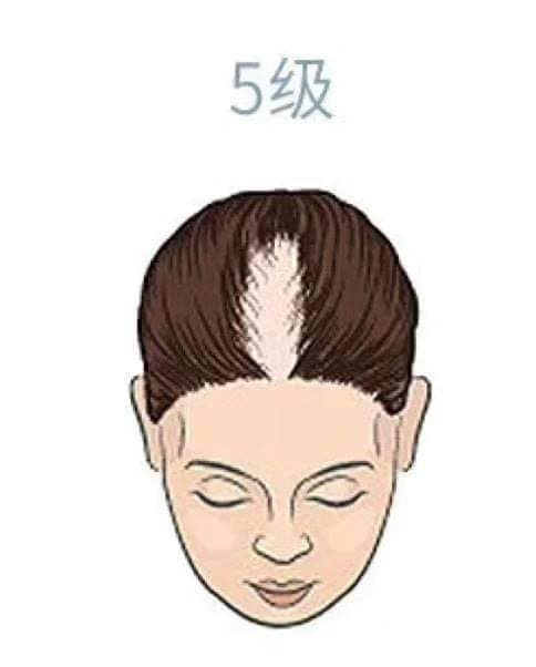 hair_loss_drop_reasons_level_health_lifestyle (5).jpg