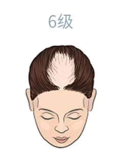 hair_loss_drop_reasons_level_health_lifestyle (6).jpg